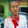 Four men sought for vicious Phuket attack on Chinese tourist