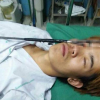 Thai teenager in lucky escape after harpooning his eyelid
