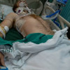 Uninsured British man on way to extend his visa loses leg after horrific motorbike accident