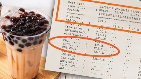 """""""Bubble Tea"""" sends woman's sugar and triglyceride readings through the roof!"""