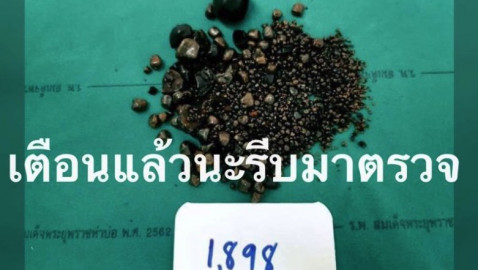 It's a record! Patient found with 1,898 gallstones in Thai hospital