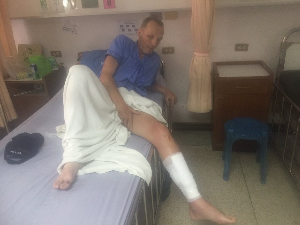 Samui resident needs help to find his bag after being badly injured in accident | Samui Times