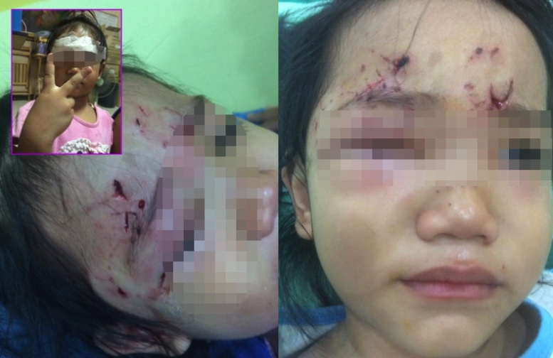Dog attack on three year old – who should be responsible for dogs outside shops? | Samui Times