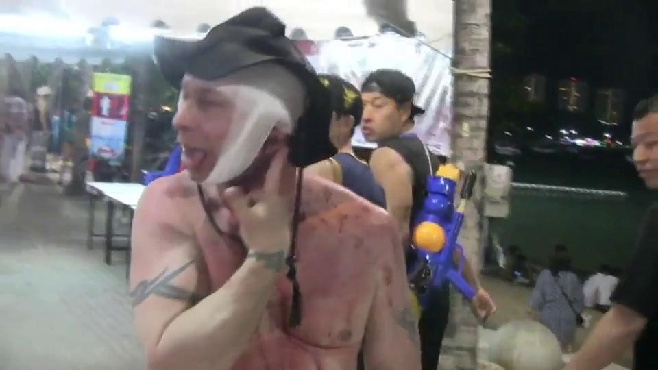 Pattaya police nowhere to be found as injured tourists complain   Samui Times