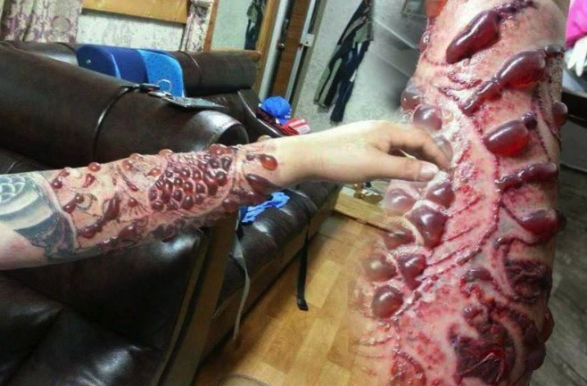 Laser tattoo removal warning as Thais spooked by pictures from China | Samui Times