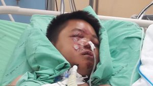 """""""Fundraiser to save the life of Wacharapon, this 15-year-old schoolboy who will never see his mum again"""" 