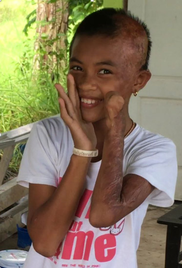 Rebuild my burned body appeal from a little girl burned for Tiny thai teen