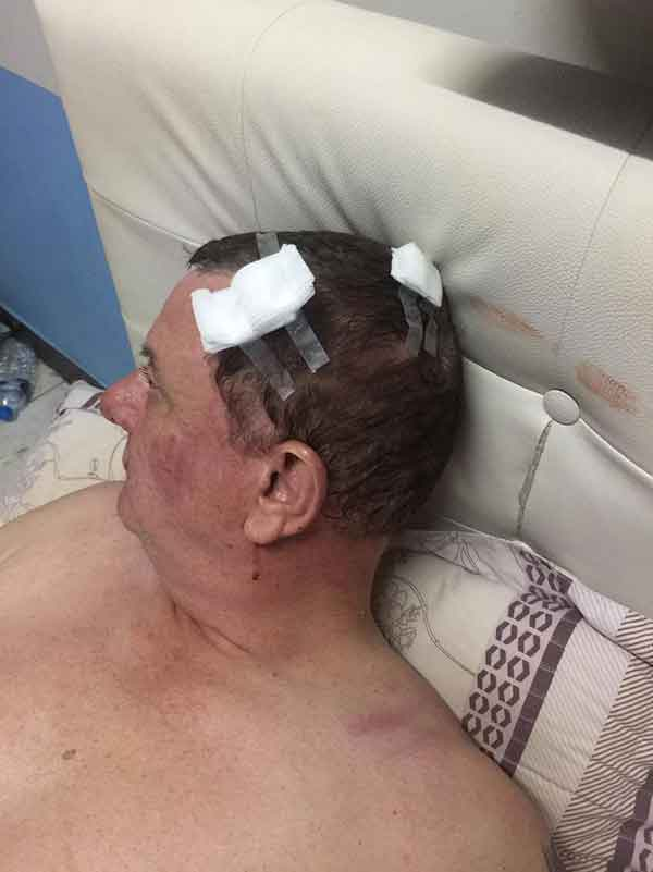 Surin bar owner from UK attacked by foreign biker gang in turf war violence | Samui Times