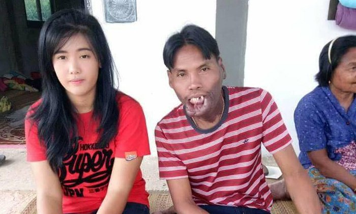 No dowry required! Man with facial disability gets the prettiest girl in the village! | Samui Times