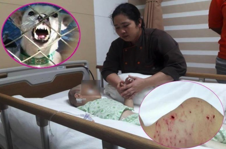 Another small child savaged by dogs – three year old in serious condition in hospital | Samui Times