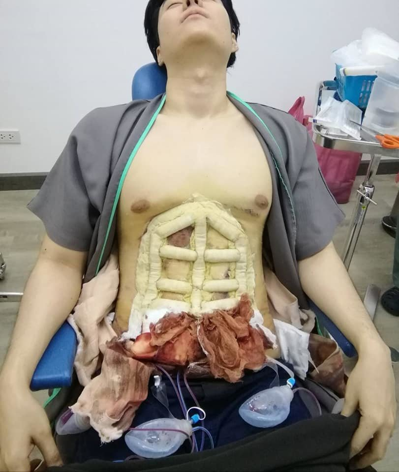 Why bother sweating in the gym to get a six-pack....when you can just have surgery!   News by Samui Times