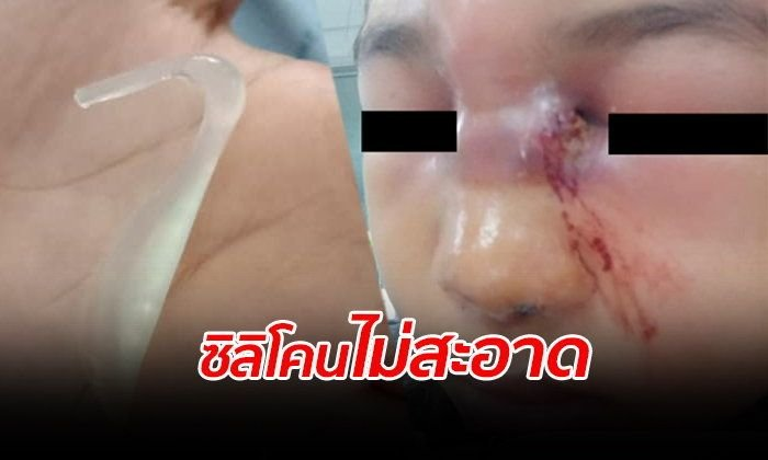 Thai woman's nose job turns foul due to dirty silicone | Samui Times
