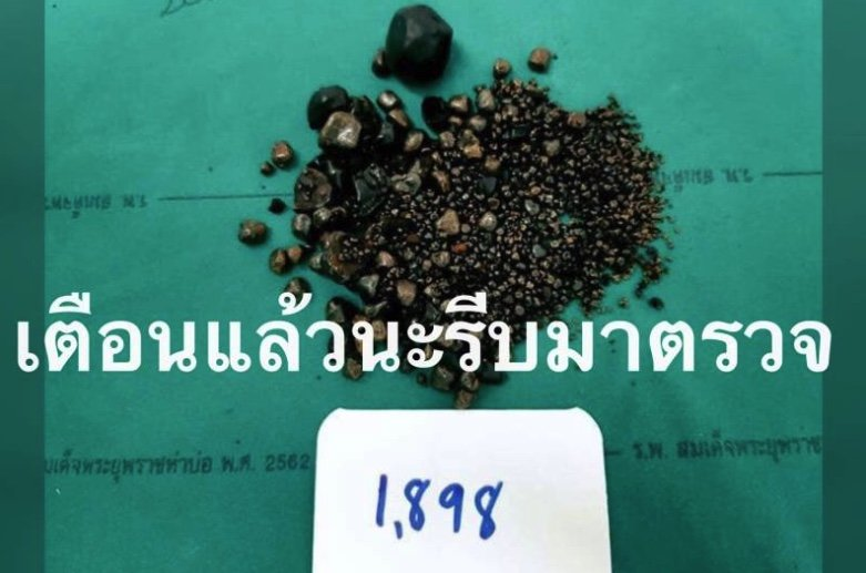 It's a record! Patient found with 1,898 gallstones in Thai hospital | Samui Times