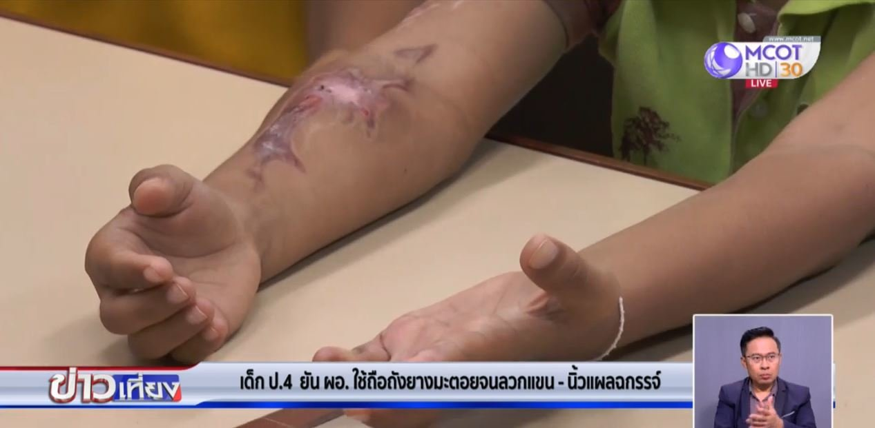 Family seek justice from director after 10 year old is severely burned at school in Kalasin | Samui Times
