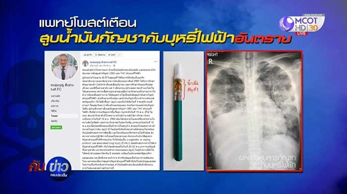Cancer doctor warns patients about vaping cannabis oil | Samui Times