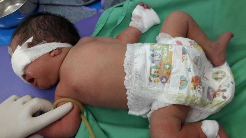 Parents call for answers after newborn's finger cut at government hospital, starts to rot | Samui Times